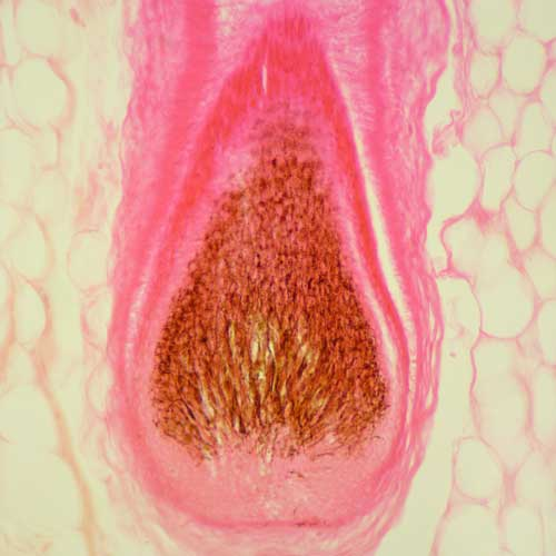 pilonidal disease feature image