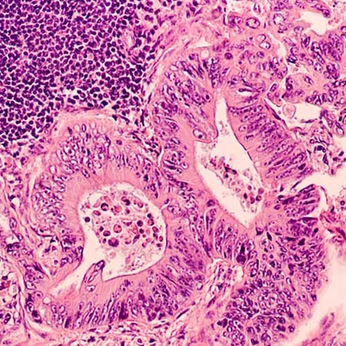 Ulcerative colitis feature image